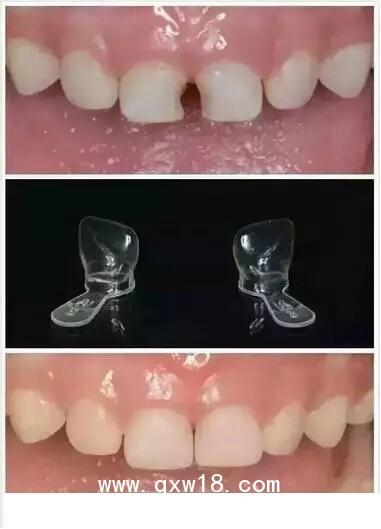 乳牙预成冠—让孩子远离龋齿困扰,重拾如花笑靥