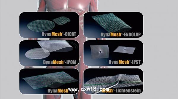 疝修补术是指通过手术治疗疝气,可以分为三大类:传统疝修补术,疝补片